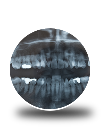 Wisdom Teeth Dentistry